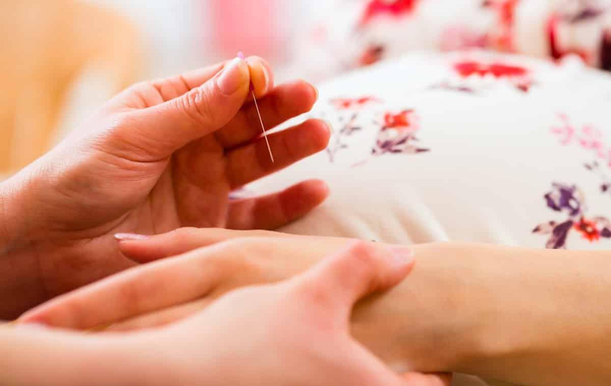 acupunctuur bij zwangerschapsklachten