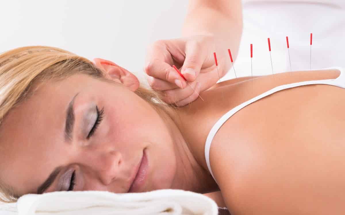 acupunctuur ontspanning en stress