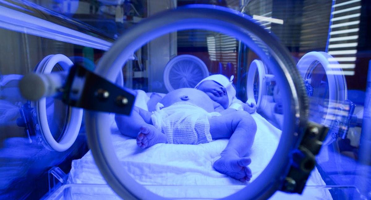 behandeling geelzucht pasgeborenen