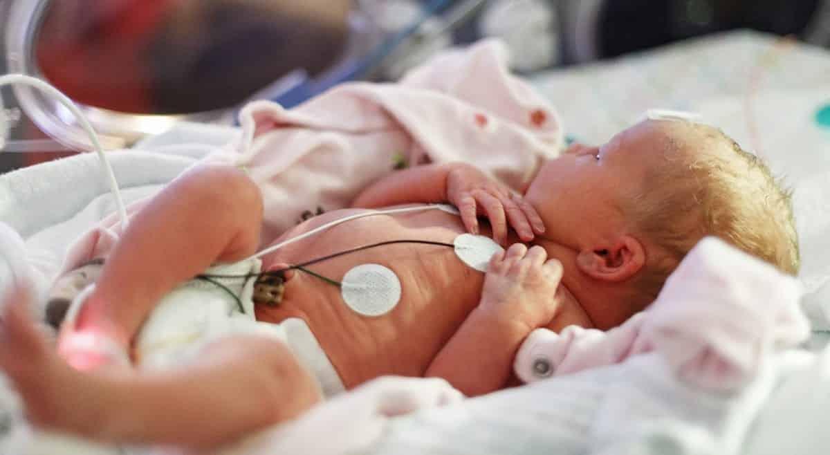 hartproblemen bij een baby herkennen
