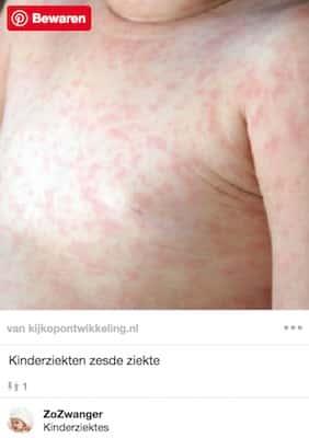 kinderziekte met vlekjes zesde ziekte