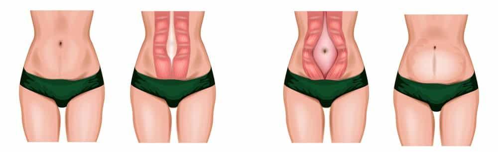 wat is diastase tijdens zwangerschap