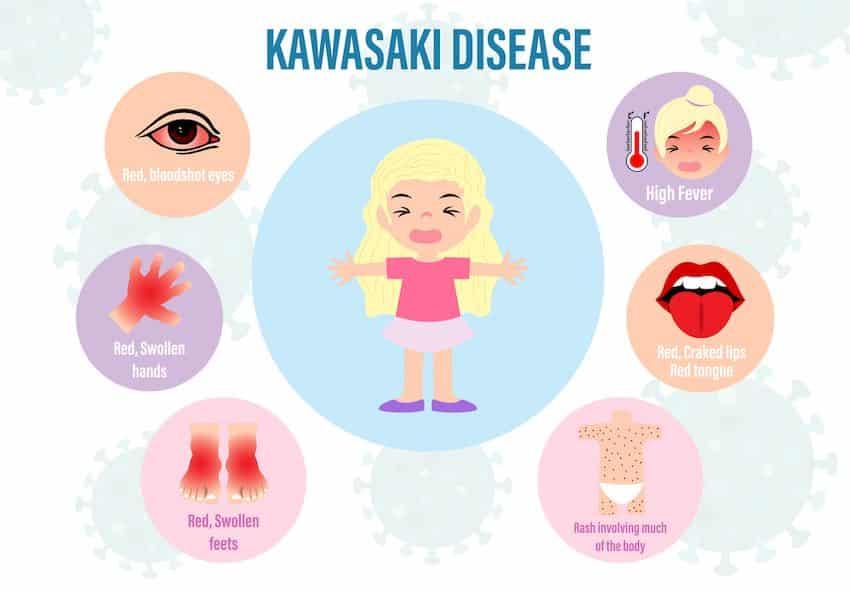 ziekte van kawasaki symptomen